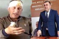 Goranboyda icra başçısının müavini şikayətçini döyüb pəncərədən aşağı tulladı-VİDEO