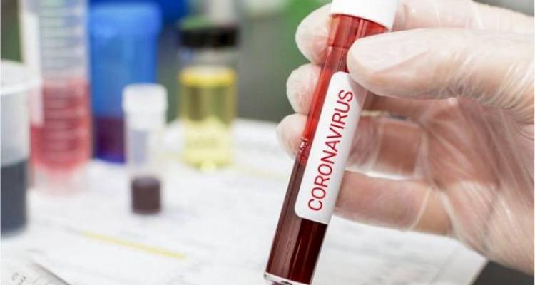 İranda son sutkada koronavirusdan 337 nəfər ölüb